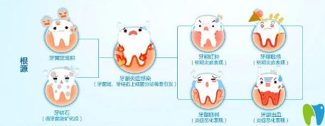 患有牙周病的人平时应注意些什么?