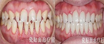 晒遵义华美口腔真人3D牙贴面修复案例过程及效果图