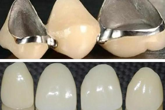 龙岩万翔口腔分享 全瓷牙和烤瓷牙区别及全瓷牙价格多少钱