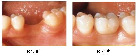 真人案例展示石家庄和协口腔单颗种植牙修复效果