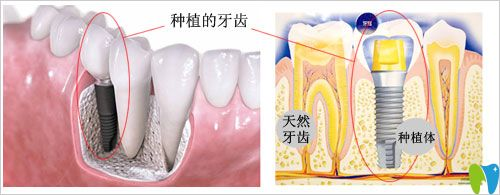 种植牙多少钱一颗?唐山拜博口腔分析种植牙价格的影响因素