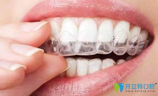 河源拜博口腔的医生解说关于隐形牙齿矫正的常见问题