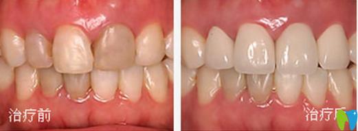吸烟导致牙齿发黄?菏泽美尔口腔全瓷牙修复就能帮你改善