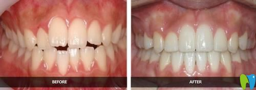 大二男生选择运城现代佳美口腔进行金属托槽牙齿矫正效果