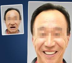 真人案例:厦门宏沅膛口腔60岁老人种植牙术前术后效果对比