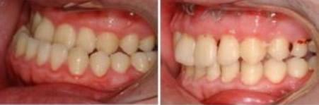 湘潭信赖口腔地包天牙齿隐形矫正价格是多少钱 有案例吗