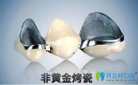 铁岭志强口腔医院的专家科普各类烤瓷牙的种类及优缺点