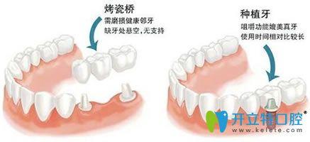 种植牙和镶牙哪个寿命更长