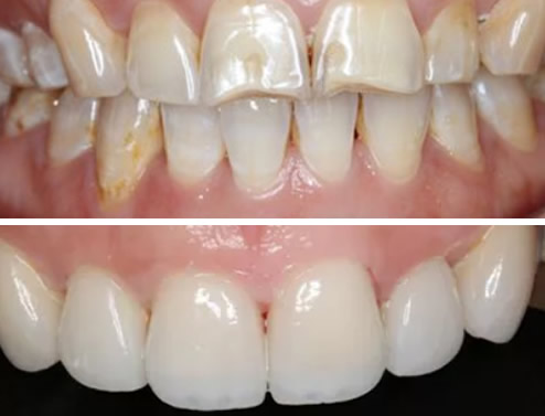 看我的氟斑牙在云浮拜尔口腔做全瓷牙贴面后白了几个色阶