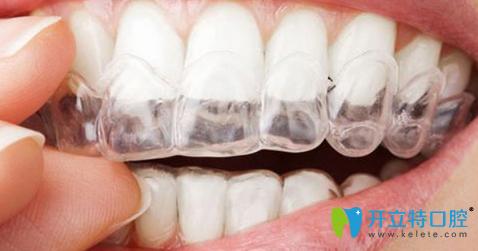 无锡隐形矫正多少钱?牙齿正畸需要多长时间?