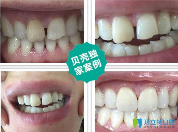 牙齿即刻修复案例前后对比案例