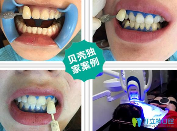 无锡贝壳口腔牙齿冷光美白过程及对比效果案例