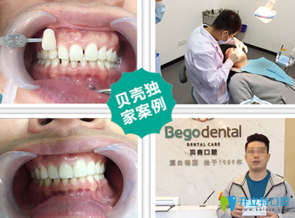 无锡贝壳牙齿修复案例