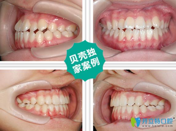 贝壳口腔隐形矫正牙齿案例