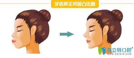 牙齿矫正能改变脸型吗?西安小白兔口腔的王鸿应告诉你真相