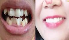 深圳拜博口腔一年半牙齿矫正结束啦,接下来开始戴保持器
