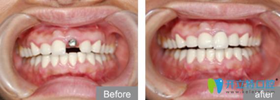 深圳格伦菲尔(唐健)口腔好不好?看单颗牙缺失用德国Ankylos种植技术种植牙案例