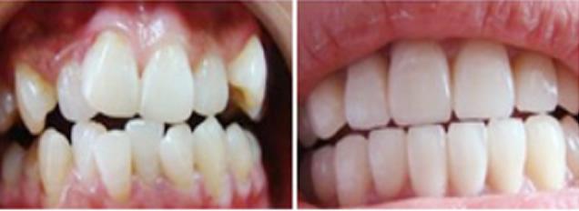 牙齿错位拥挤不齐该怎么矫正 常州北极星口腔案例供您参考