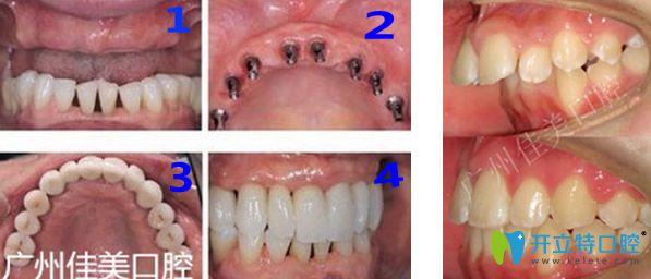 广州佳美口腔牙齿种植+龅牙矫正效果对比图