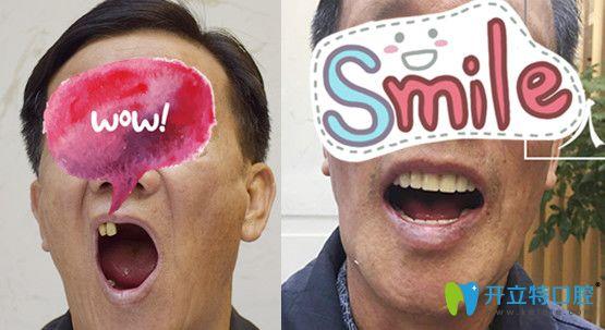 老年人种植牙好吗?北京中诺口腔65岁男士多颗牙缺失种植案例效果来验证