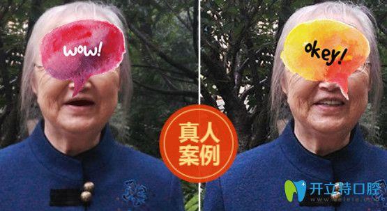 北京中诺口腔八十岁老太全口牙缺失种植案例