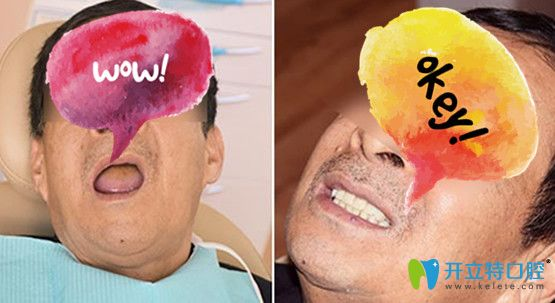 采用立得用种牙体系种植全口牙案例