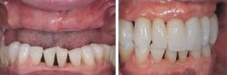妈妈上颌牙掉光了在广州佳美口腔做种植牙价格是6000元/颗