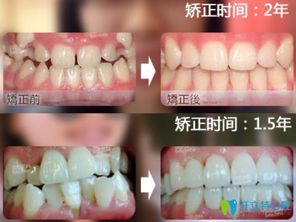 成都贝臣齿科集赞优惠项目价格表及牙齿矫正技术大PK