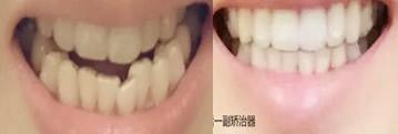 牙齿矫正要多久?90后美女用10个月完成牙齿正畸的真实经历