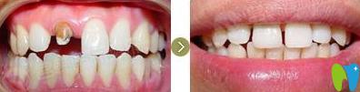 想知道种植牙多少钱一颗?看北京西尔口腔全部项目价格表