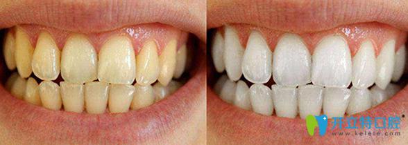 金华贝丽口腔门诊怎么样?张丽芳医生的牙齿美白案例展示