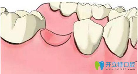 拔牙后多久可以镶牙?镶牙的价格大概需要多少钱?
