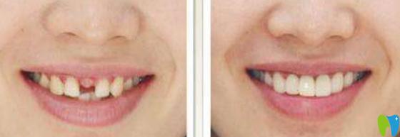 深圳诺德口腔单颗牙缺失治疗前后照片