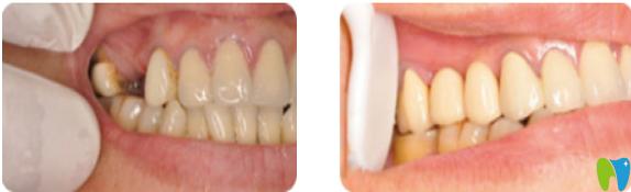 深圳诺德口腔怎么样?诺德齿科种植牙案例前后对比图