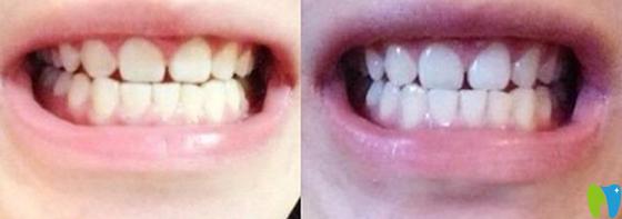 诺德口腔洁牙前后对比照片效果展示