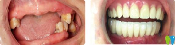 诺德齿科半口牙缺失种植案例