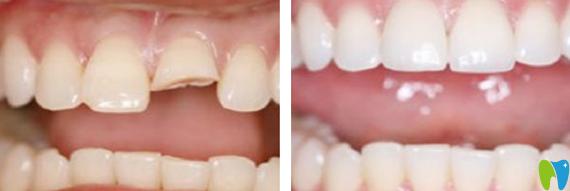 深圳诺德齿科牙齿修复前后对比照片