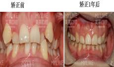 牙齿矫正多少钱?花1.6万元在深圳美莱口腔做半隐形矫正案例