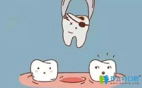 拔牙后多久可以镶牙?听深圳世纪河山口腔种植医生解析