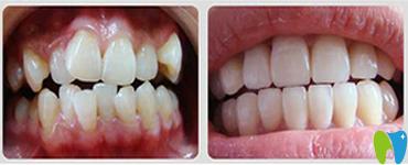 穗江口腔牙齿矫正前后效果对比图