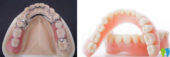 广州佳美口腔分享:假牙材料哪种比较好 装一颗假牙多少钱