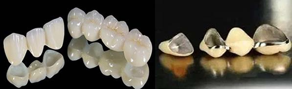 深圳博爱口腔解析 为什么全瓷牙价格比烤瓷牙高 区别在哪