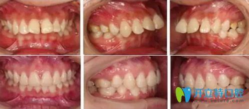 广州广大口腔做牙齿正畸怎么样?牙齿矫正真人案例反馈
