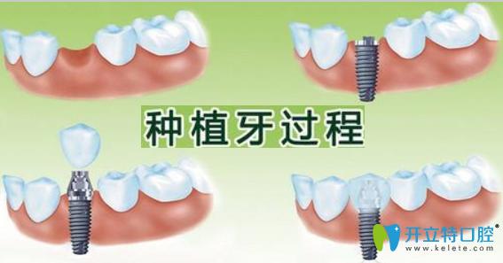 种植牙的利与弊有哪些?广州广大口腔牙齿种植医生来简述