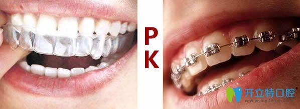 牙齿矫正中的牙箍和牙套有什么区别?通过比较来看哪个好