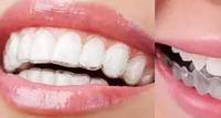 隐形牙齿矫正器价格是多少钱?隐形牙套真的可以矫正牙齿吗?