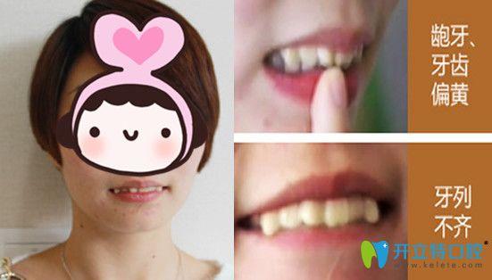你信吗?龅牙妹子在苏州牙博士口腔仅花费7天就完成牙齿矫正