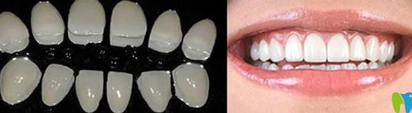 黄牙怎么形成 深圳岚世纪口腔介绍瓷贴面美白牙齿优缺点