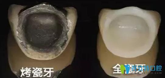 烤瓷牙和全瓷牙区别及价格表 珠海九龙口腔张大伟专题访谈