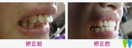 中山香山口腔牙齿矫正效果对比图